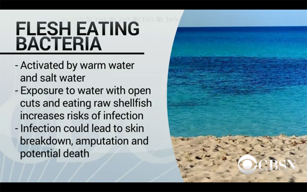 Florida Beachgoers Warned About Deadly Flesh-eating Bacteria