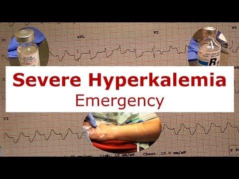 Severe Hyperkalemia Emergency